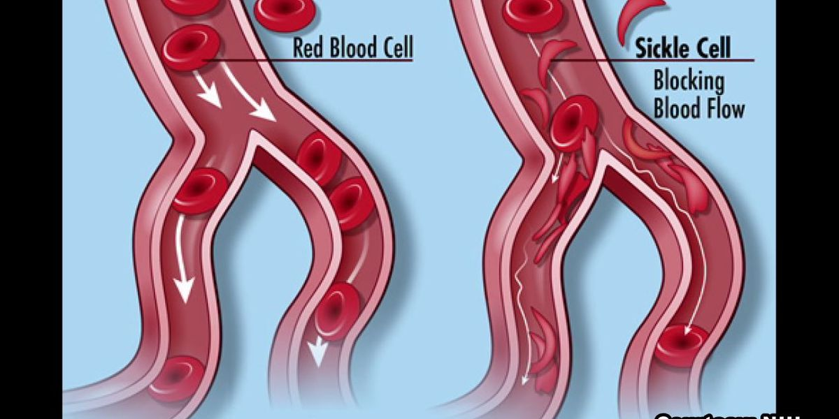 Clinical trial coming to UAB could result in cure for sickle cell disease