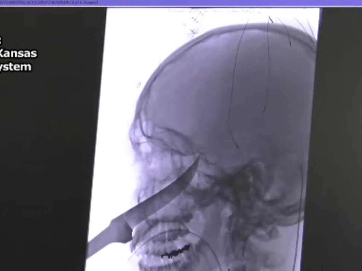 Kansas boy very lucky to survive knife impaling his face