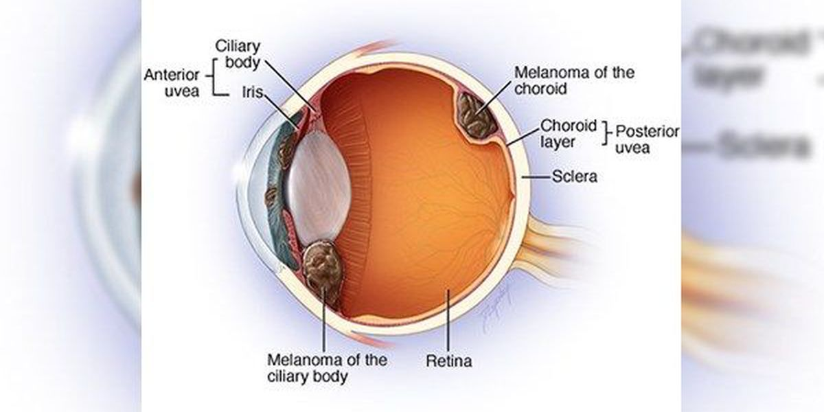 What is metastasized ocular melanoma? A look at Blanco's fight
