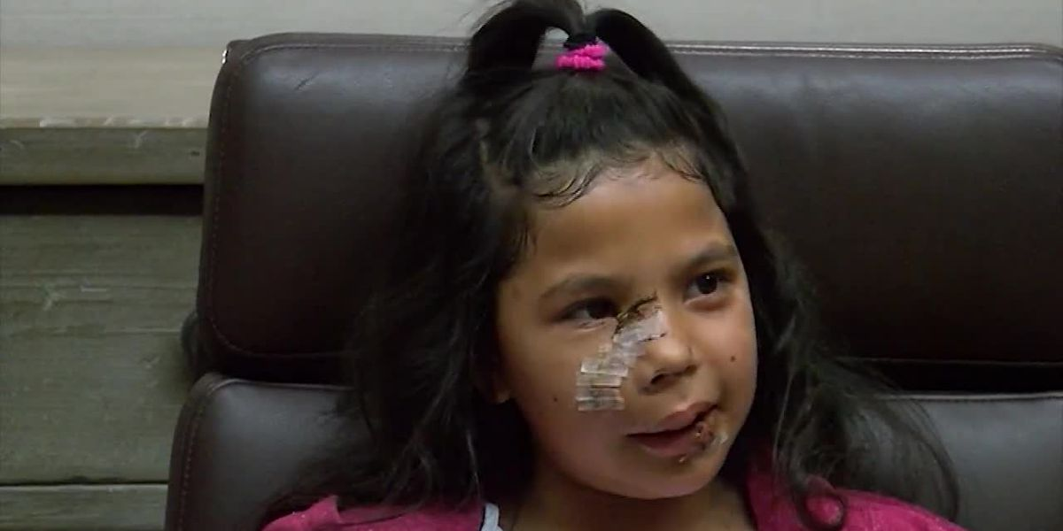 Family sues after 8-year-old girl bitten by dog visiting Calif. classroom