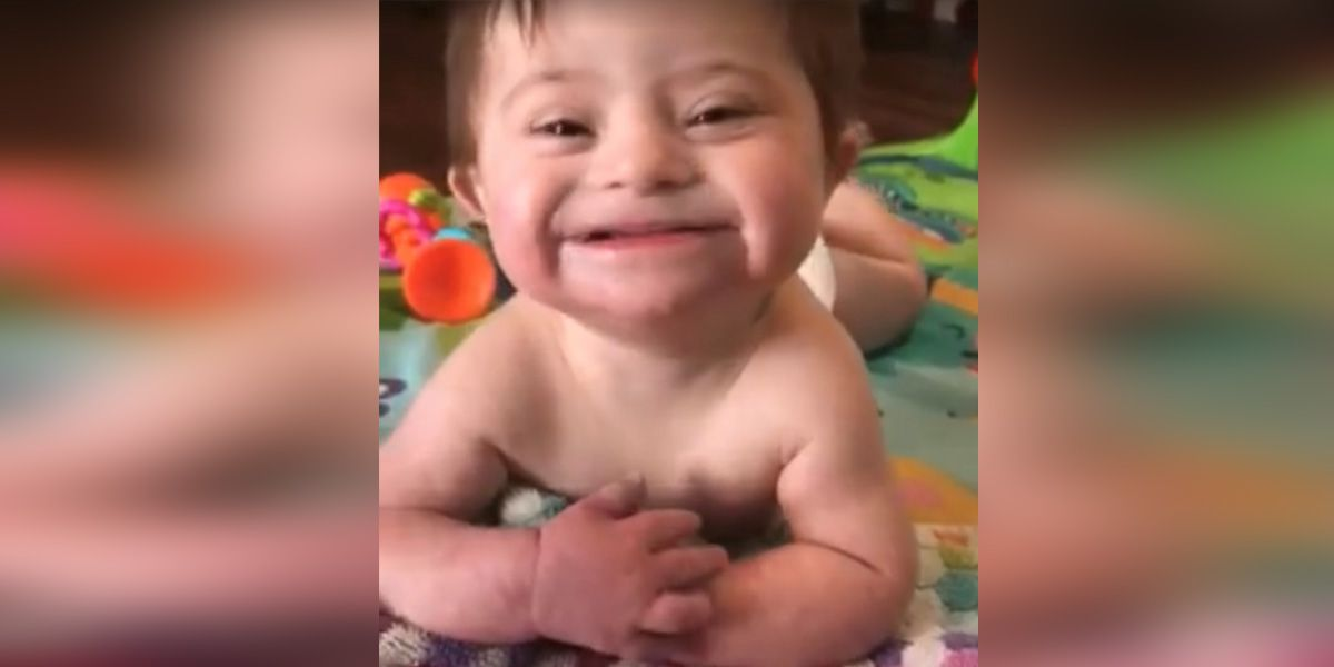 Video of adopted baby with Down syndrome goes viral