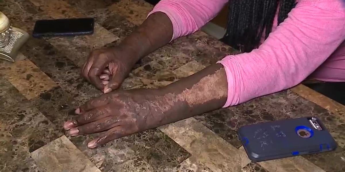 'Don't do it,' says burn victim who participated in fire challenge