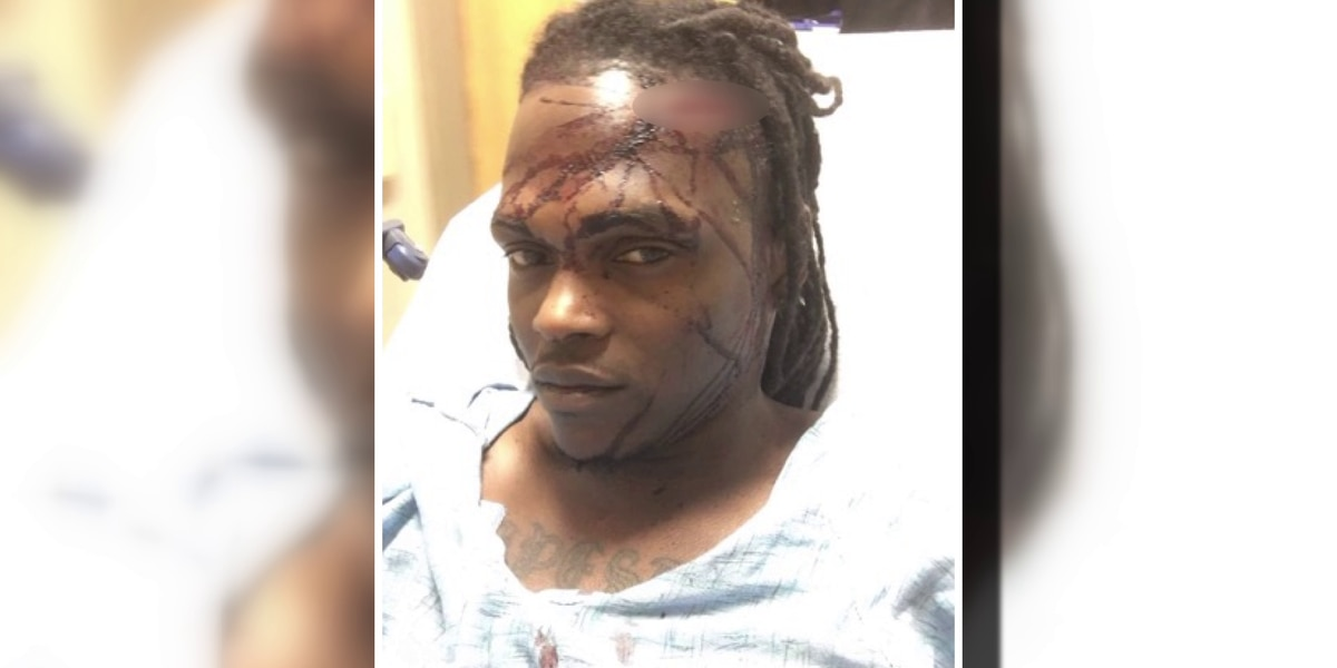 Memphis man says he was brutally beaten by security guard in case of mistaken identity