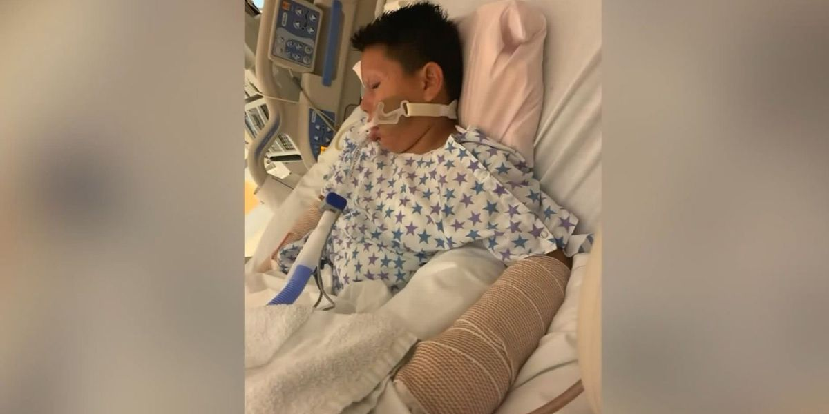 GRAPHIC: 10-year-old Calif. boy seriously injured after men toss him lit firework, family says