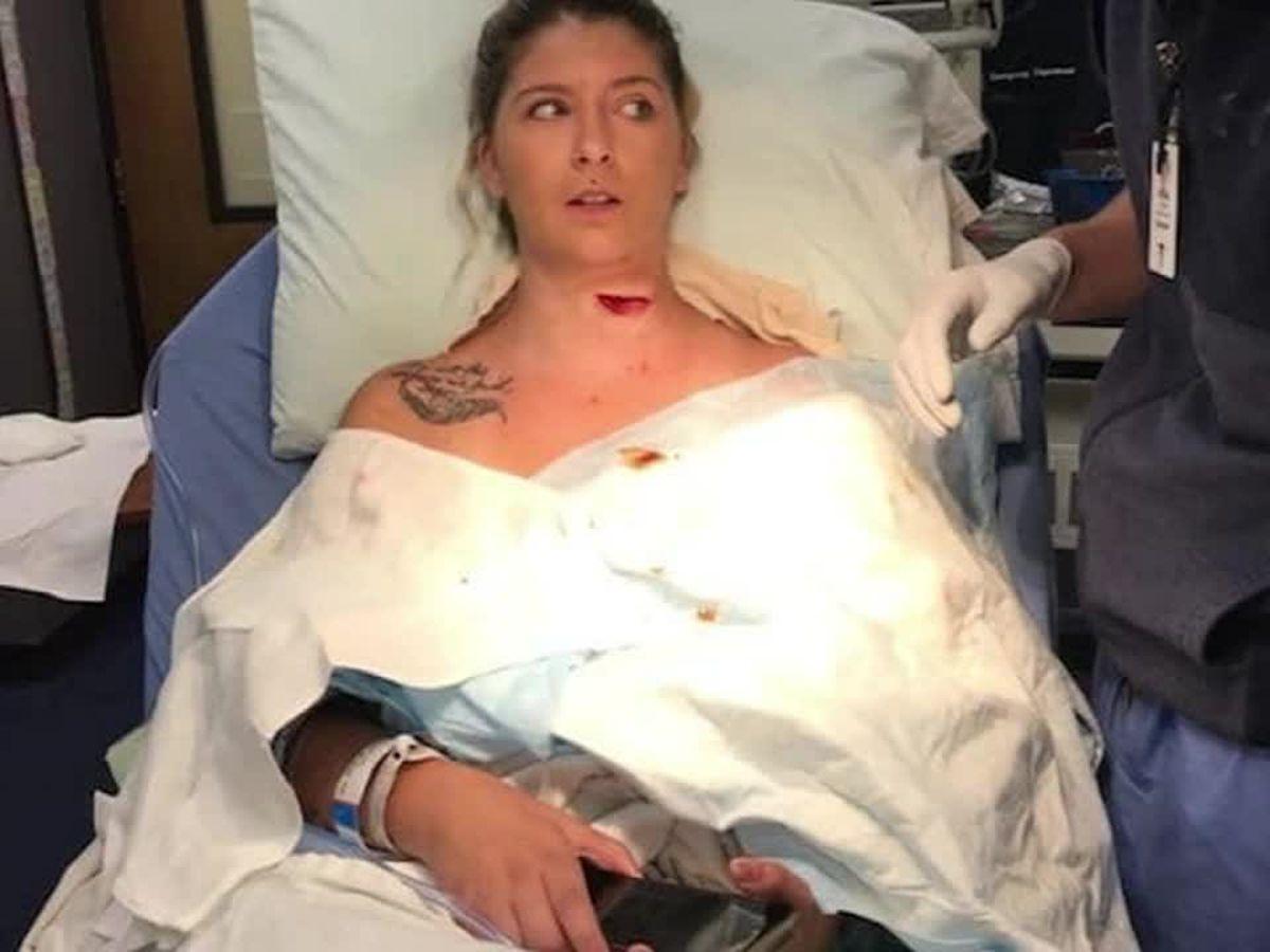 Graphic: Freak lawnmower accident slices open woman's neck