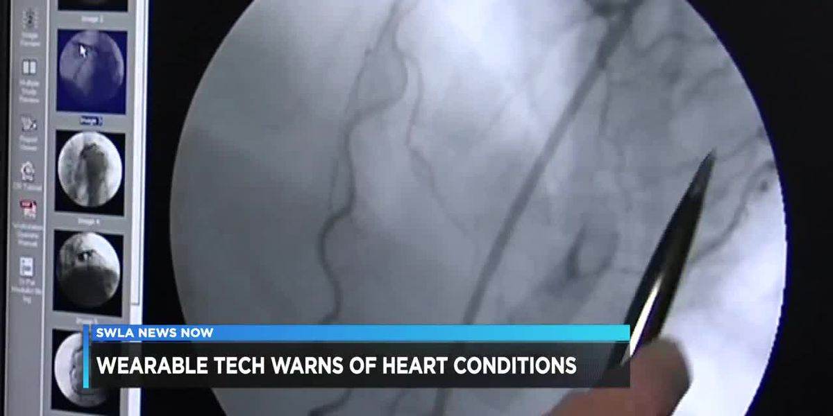 Modern technology can help detect irregular heart rhythm